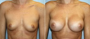 Breast Augmentation Patient 52