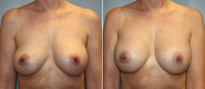 Breast Implant Revision Patient 4