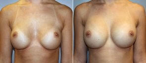 Breast Implant Revision Patient 5