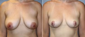 Breast Reduction Patient 8