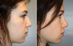 Nose Surgery Patient 5