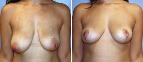 Breast Lift Patient 2