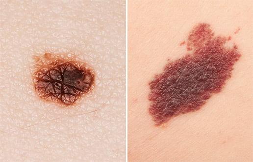 Melanoma Example