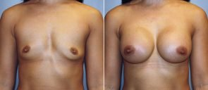 Breast Augmentation Patient 54