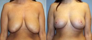Breast Reduction Patient 9