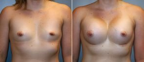 Breast Augmentation Patient 59
