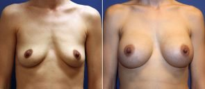 Breast Augmentation Patient 60