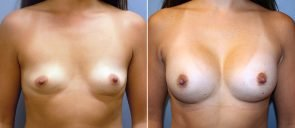 Breast Augmentation Patient 61