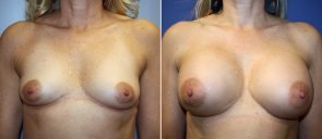 Breast Augmentation Patient 62