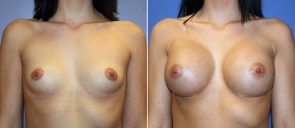 Breast Augmentation Patient 63