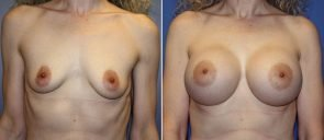 Breast Augmentation Patient 64