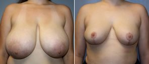 Breast Reduction Patient 15