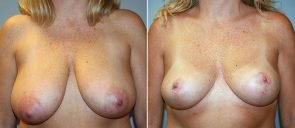 Breast Reduction Patient 16