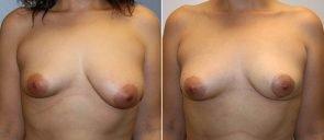 Breast Reduction Patient 11