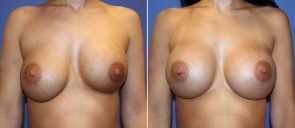 Breast Implant Revision Patient 7