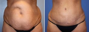Tummy Tuck with Liposuction Patient 26