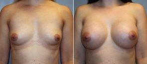 Breast Augmentation Patient 67