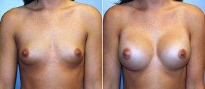 Breast Augmentation Patient 68