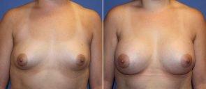 Breast Augmentation Patient 69