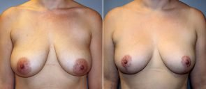 Breast Reduction Patient 17
