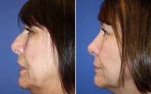 Nose Surgery Patient 6