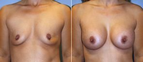 Breast Augmentation Patient 70