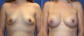 Breast Augmentation Patient 71
