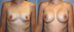 Breast Augmentation Patient 72