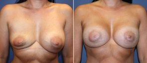 Breast Implant Revision Patient 8