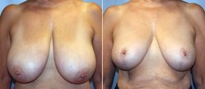 Breast Reduction Patient 18