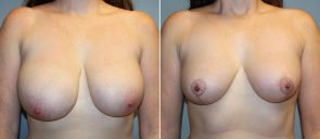 Breast Reduction Patient 19