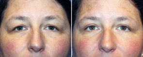 Eyelid Rejuvenation Patient 9