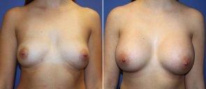 Breast Augmentation Patient 75