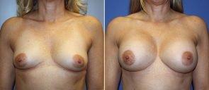 Breast Augmentation Patient 76