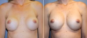 Breast Implant Revision Patient 9