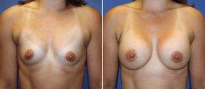 Breast Augmentation Patient 77