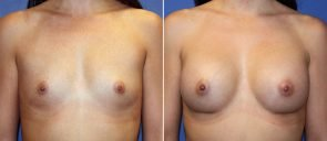 Breast Augmentation Patient 78