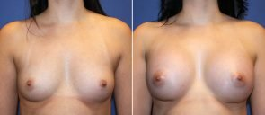 Breast Augmentation Patient 80