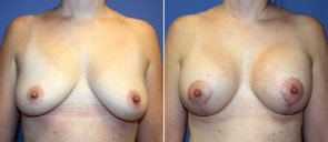 Breast Augmentation with Lift Patient 17