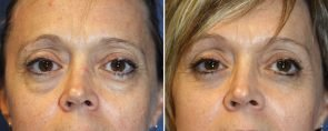 Eyelid Rejuvenation Patient 10