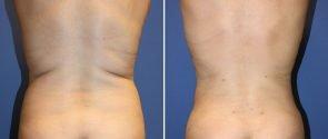 Liposuction Patient 9