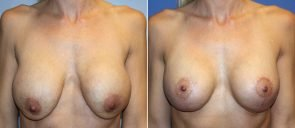 Breast Implant Revision Patient 10