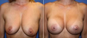 Breast Augmentation with Lift Patient 18