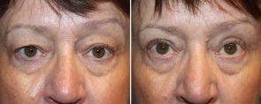 Eyelid Rejuvenation Patient 11