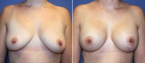 Breast Augmentation with Lift Patient 19
