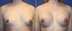 breast-augmentation-19563a-berks