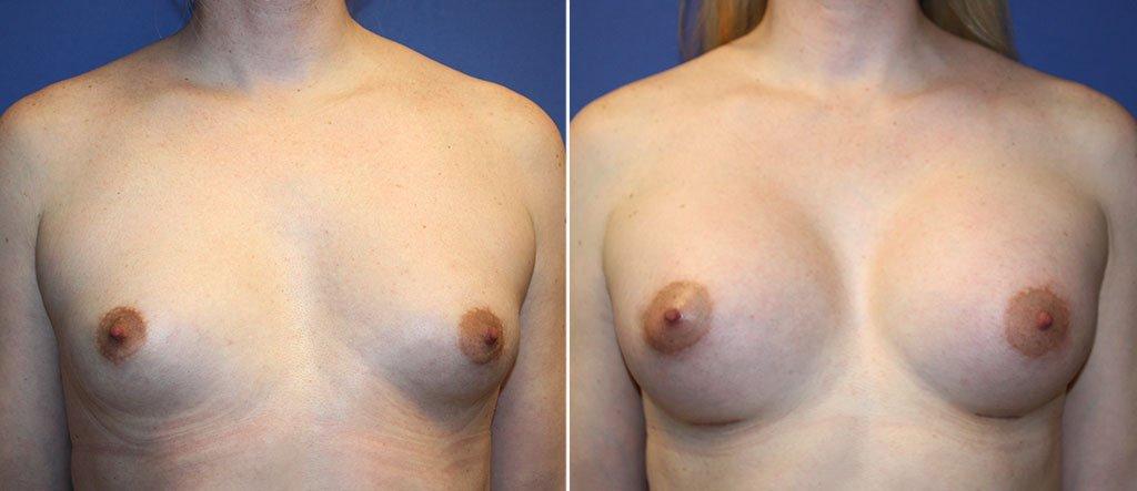 Breast Augmentation Patient 94