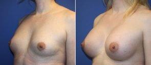 breast-augmentation-19563b-berks