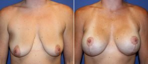 Breast Augmentation with Lift Patient 20