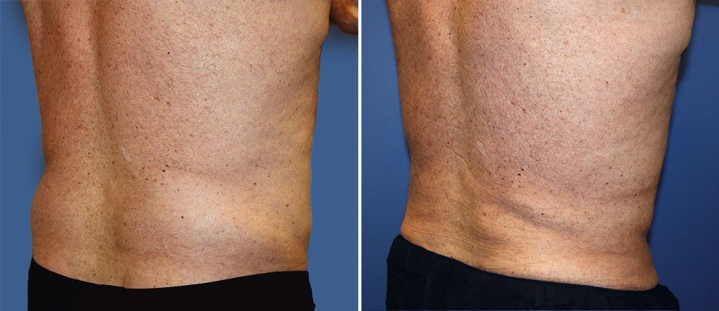 liposuction-male-19584b-berks